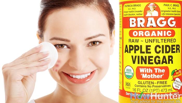 20 Ways to Use Apple Cider Vinegar9